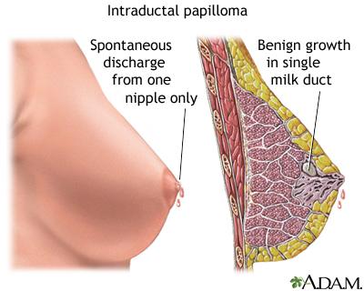 termenii tratamentului negi genitale ovare și paraziți vii