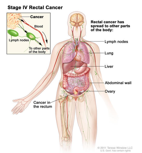 rectal cancer lymph nodes squamous cell papilloma slideshare