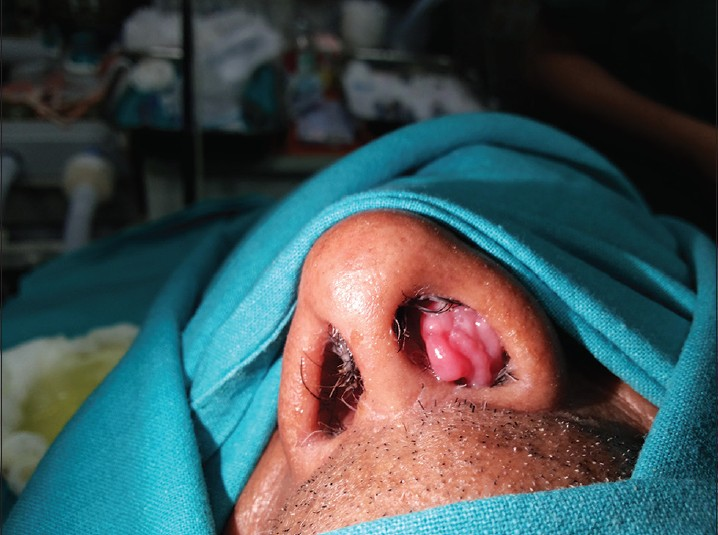 Endoscopic medial maxillectomy for inverted papilloma.