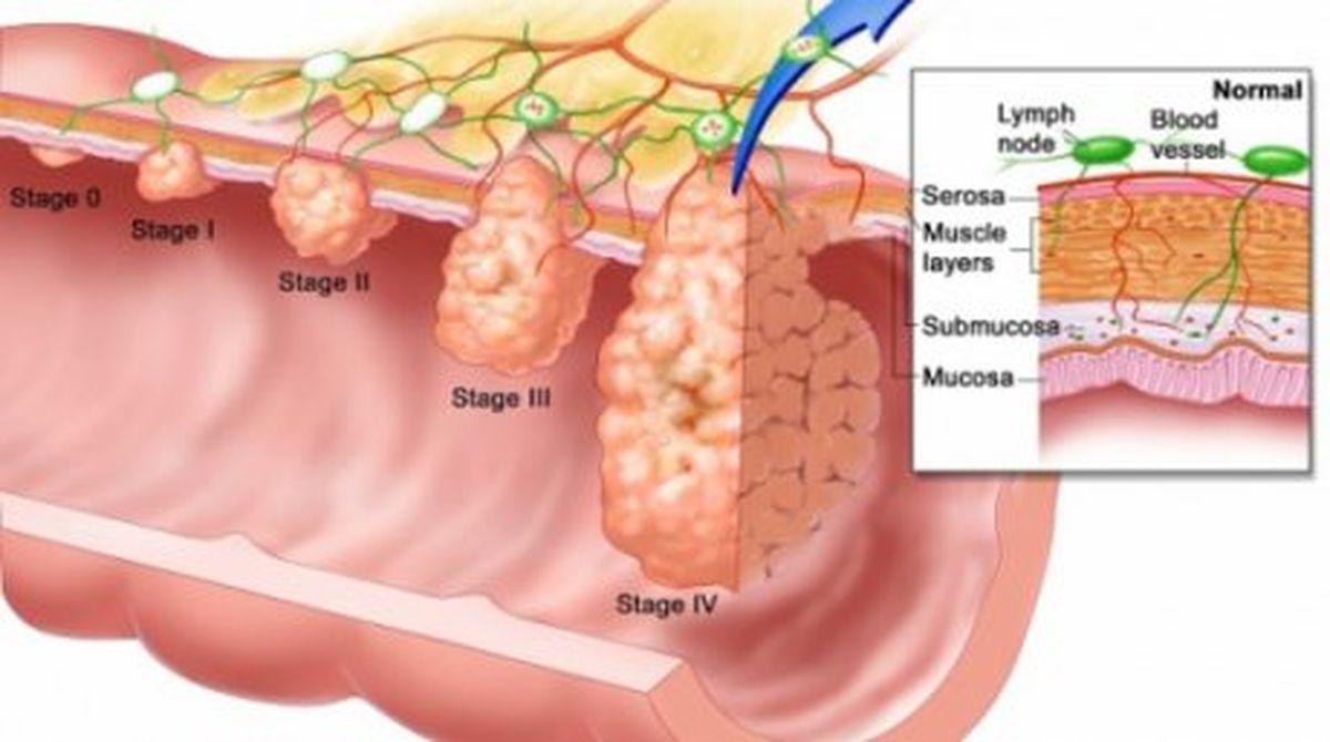 ce este verucile cervicale peritoneal cancer nz