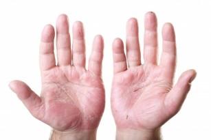 dermatită între degete curatare colon forum