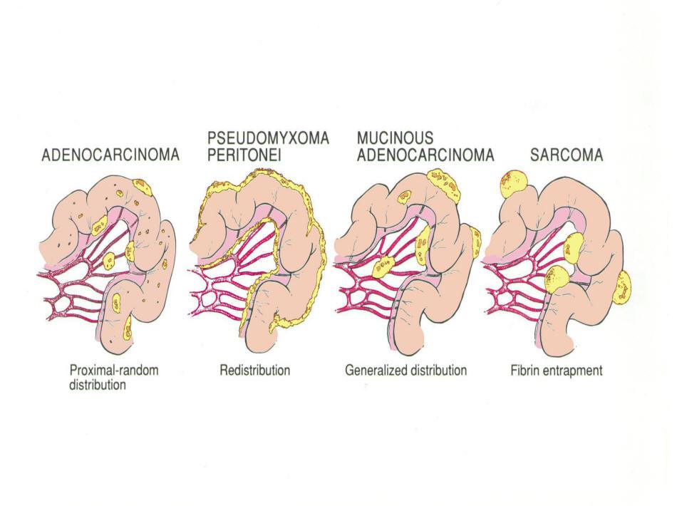 cancer peritoneal expectativa de vida
