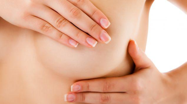 papillom brust entfernen oder nicht