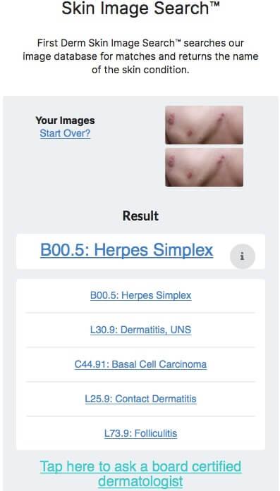 human papilloma virus netdoktor