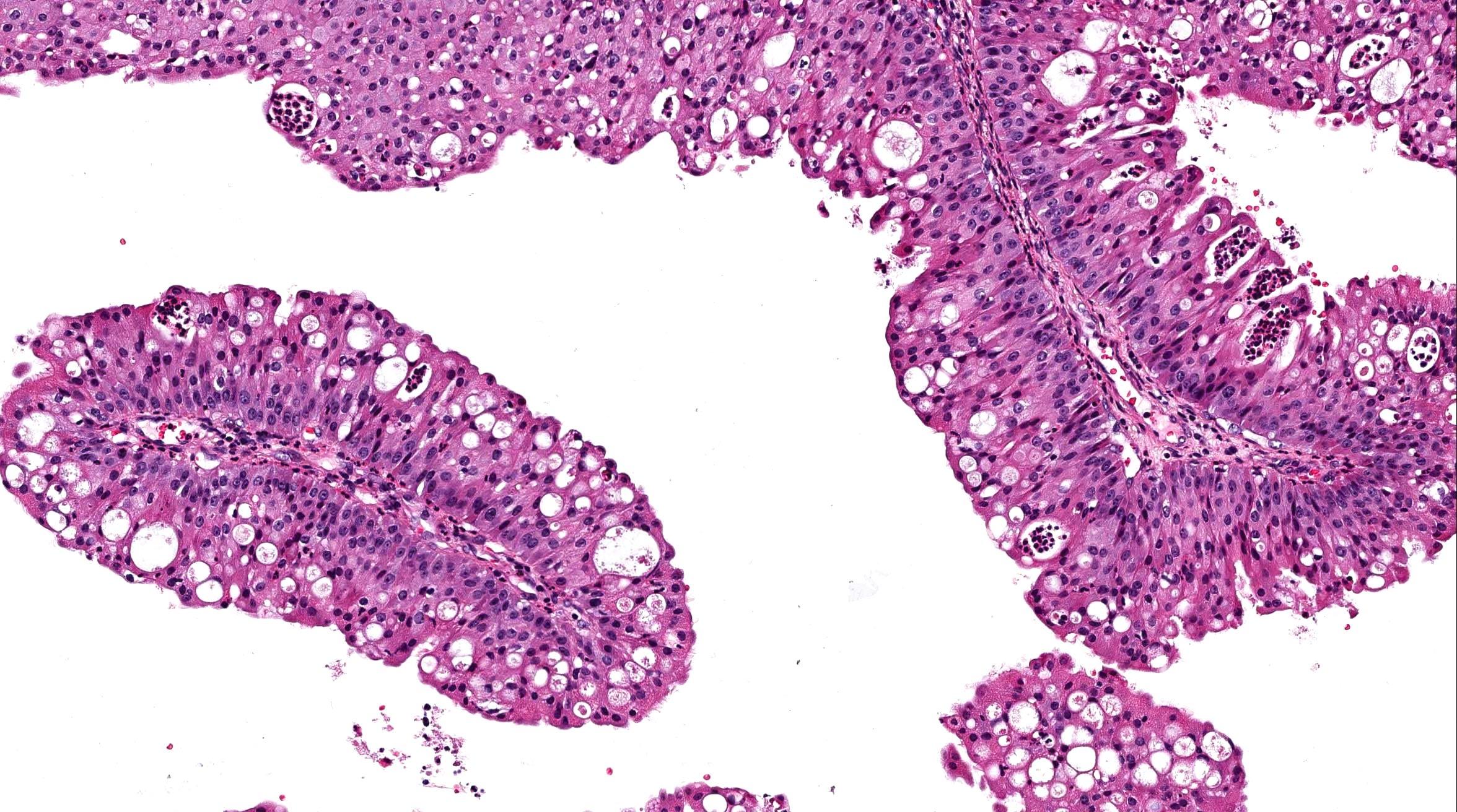 Nasal papilloma pathology outlines.