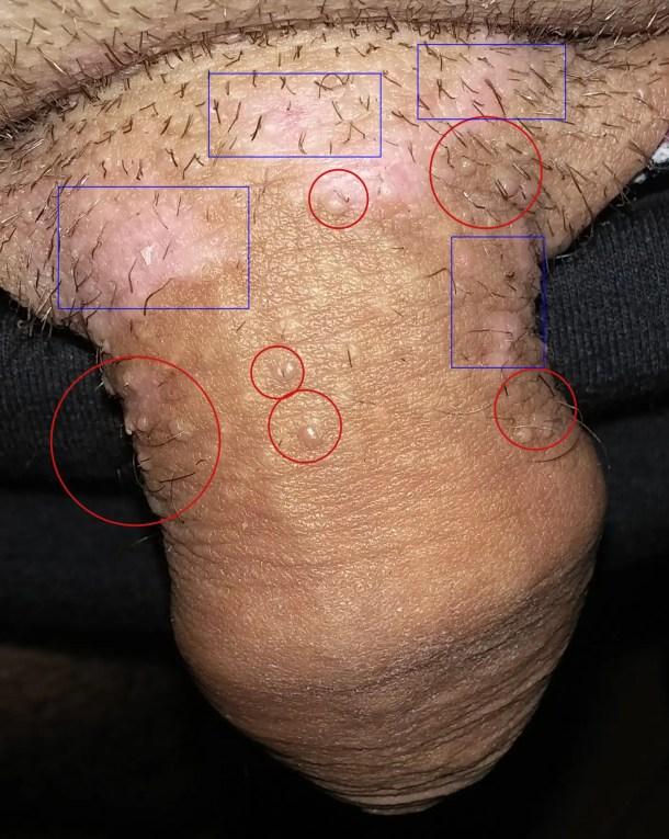 Papillomavirus chez l homme symptome - Detection du papillomavirus chez lhomme,