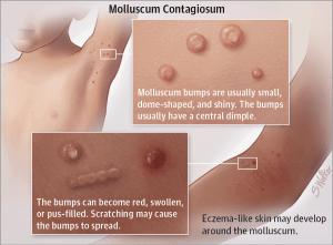 histologia condiloamelor