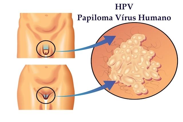 papillomavirus homme verrues