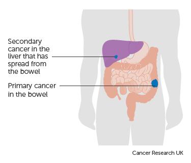 Cancer metastatic to liver. Colorectal cancer with liver metastases treatment, REVISTA FARMACIA