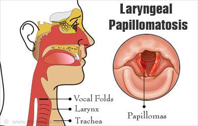laryngeal papillomatosis in babies