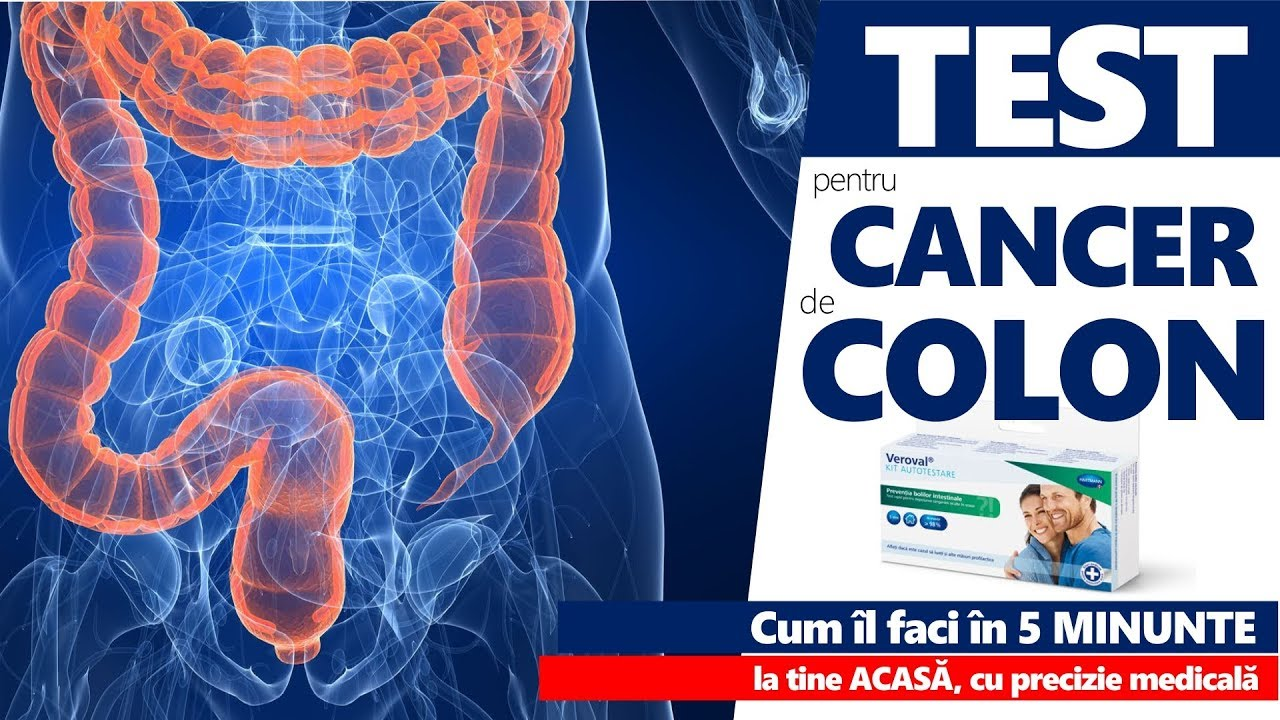 doare cancerul de colon