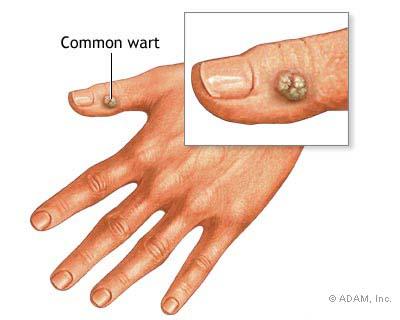 papilloma virus i sintomi