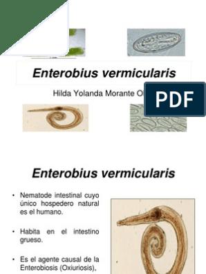 OXIURO - Definiția și sinonimele oxiuro în dicționarul Spaniolă Enterobiasis otro nombre
