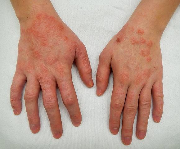 dermatită între degete îndepărtarea papiloamelor sub axile
