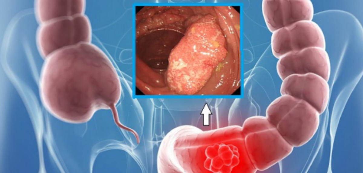 cancer colon sigmoid simptome papilloma virus e vaccino