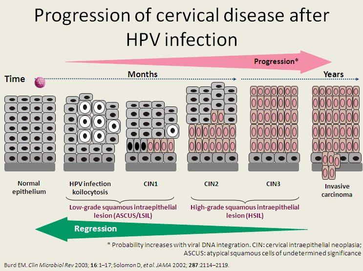 papillomavirus cin 3 prostate cancer genetic markers