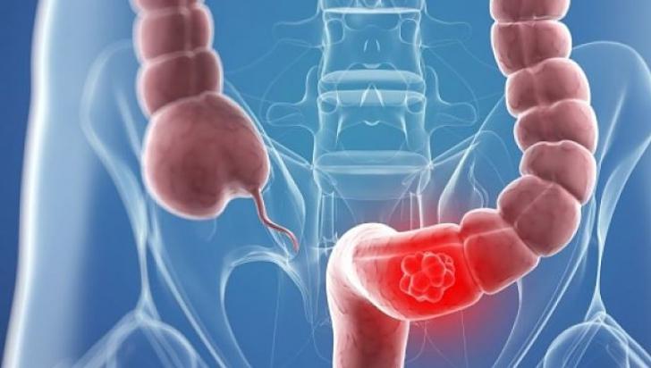 genital hpv hands cancerul maduvei spinarii