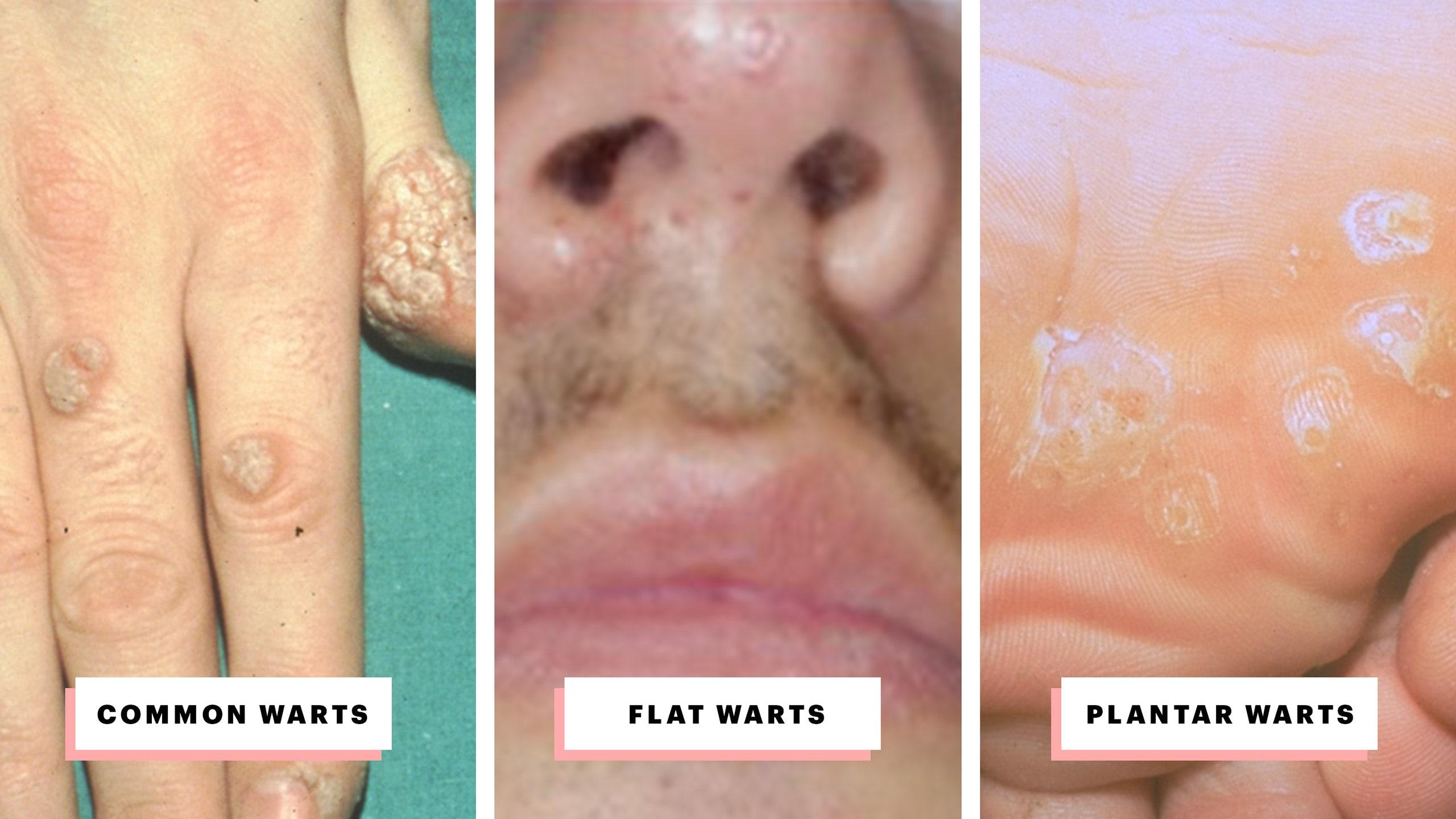 nasal warts treatment