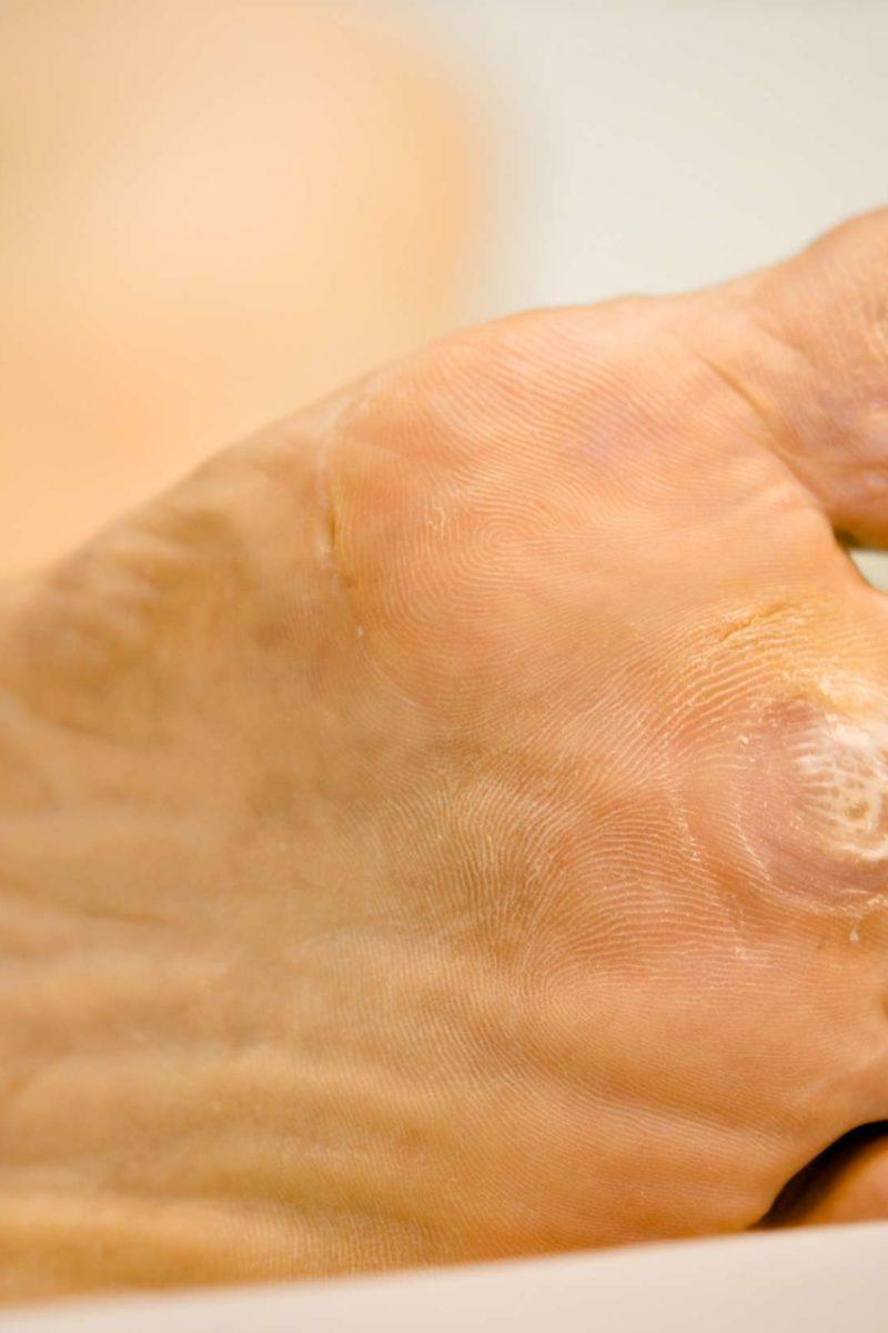 warts foot hurt hpv vaccine neck pain