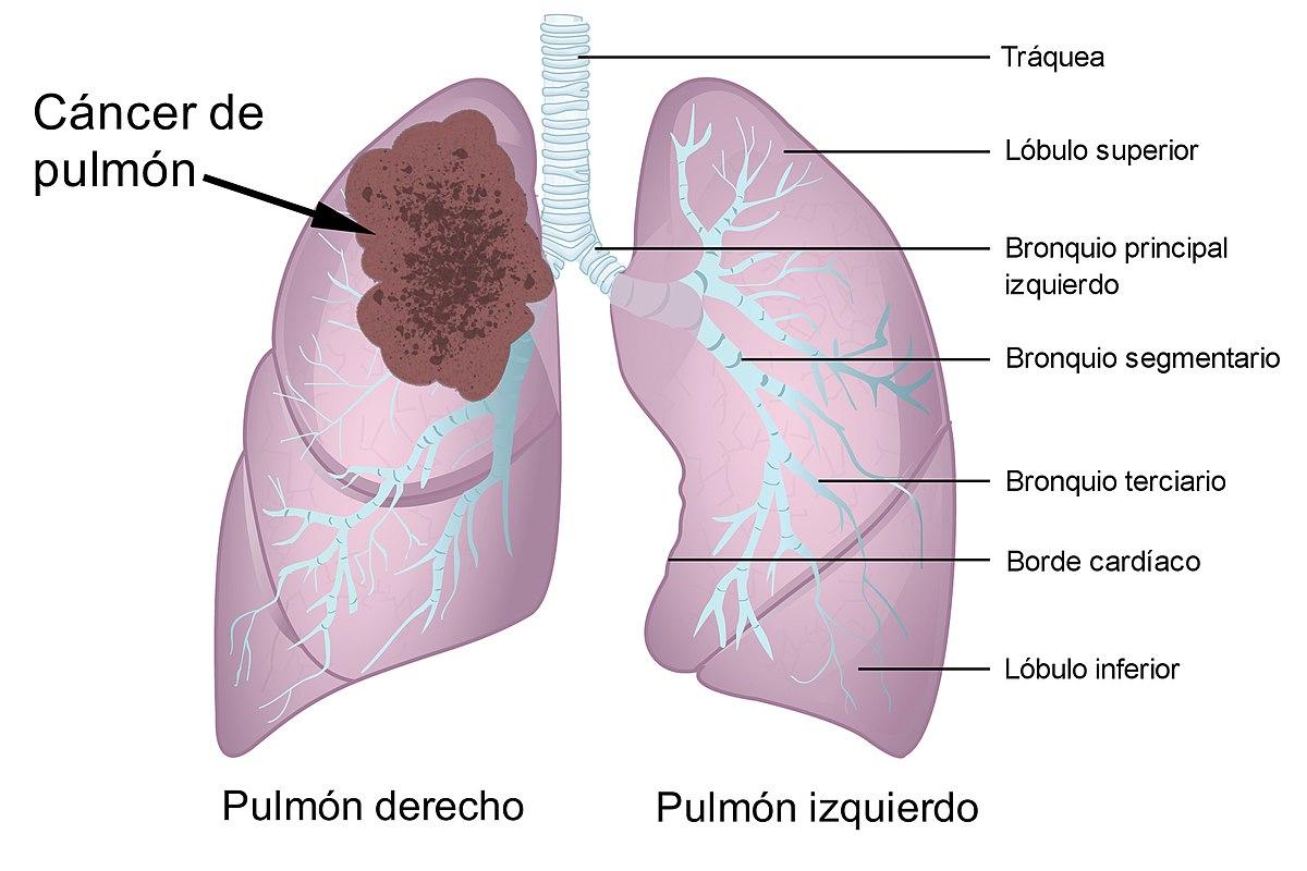cancer de prostata bibliografia