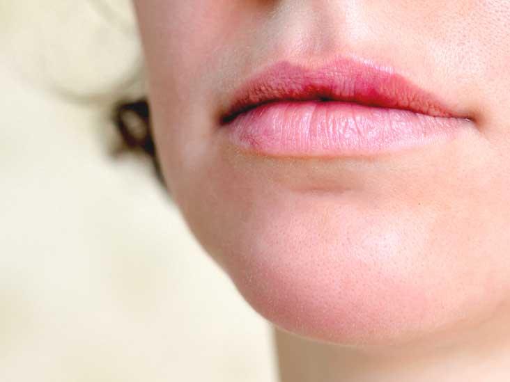 Hpv warts in mouth - HPV o necunoscuta? - Forumul Softpedia