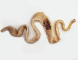medicamente sigure pentru tratarea paraziților la copii negi genitale ale tratamentului vulvei