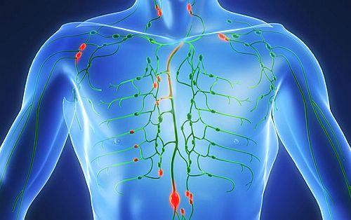 Cancerul limfatic – cauze, simptome si tratament