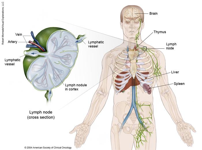 cancer de hodgkin esperanza de vida