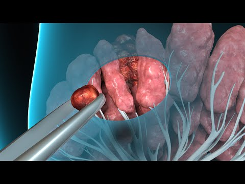 how to remove intraductal papilloma