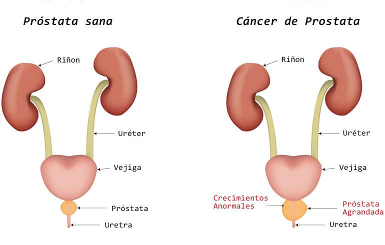 cancer de prostata impotencia