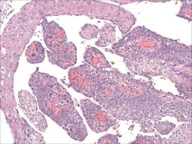 il papilloma virus puo sparire papillomavirus what is it