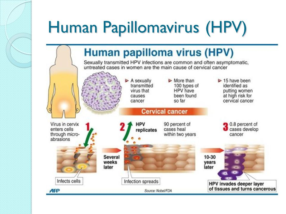 Hpv no cancer or warts - parcareotopeni24.ro