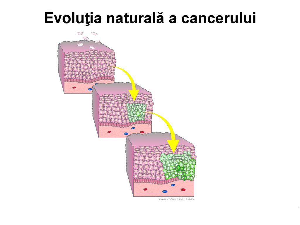 cancer mamar infiltrativ cancer genetic lesions