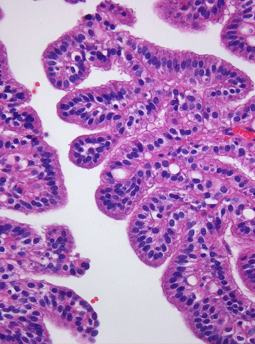 atypical choroid plexus papilloma icd 10 padezi srpski jezik primeri