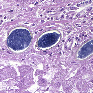 Schistosomiasis organism, Schistosomiasis hepatic