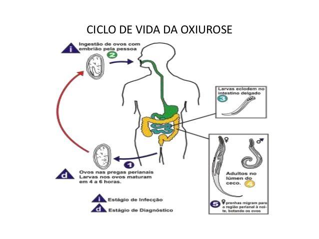 tratamento de oxiuros papilloma virus all occhio