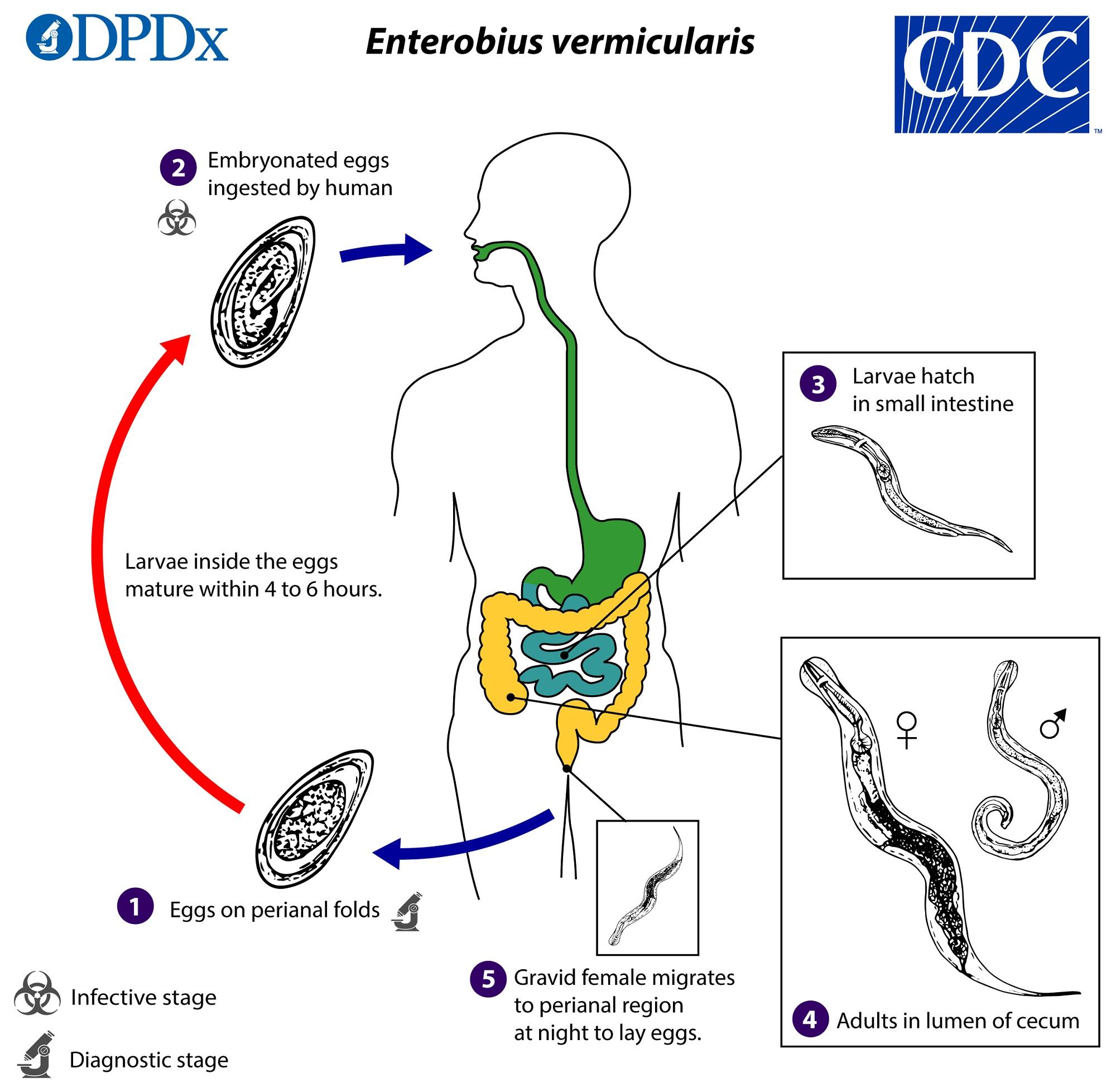 oxiuros vermicularis tratamiento paraziți la simptome și tratament la femei