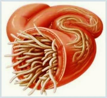 analiza pentru paraziti intestinali