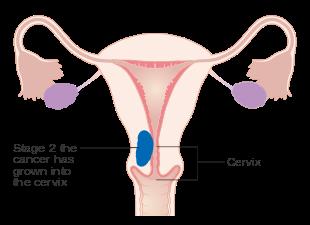 can hpv virus cause endometrial cancer cât de repede poți scăpa de paraziți