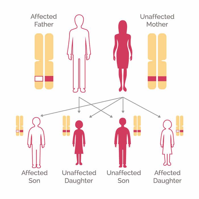 cancer and genetic mutation cancer sarcoma protuberans
