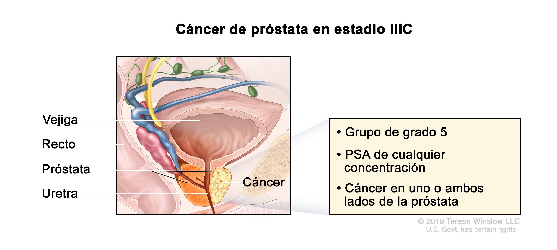 Impotenta cu pietre de prostata Cancer de prostata impotencia