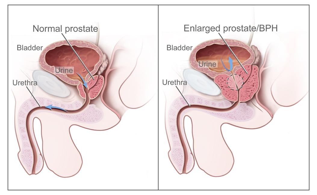 rectal cancer how long to live giardioza in timp ce este insarcinata