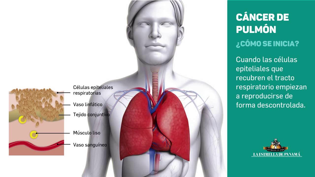 cancer epitelial de pulmon