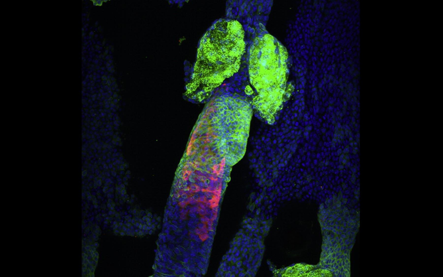 cancer genetic lesions tratarea paraziților cu sulf