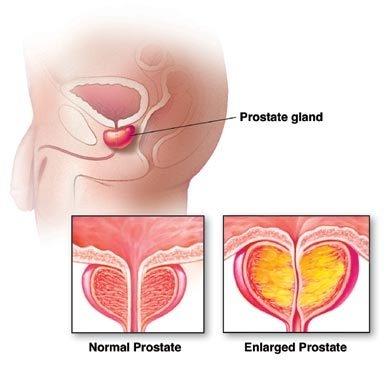 cancerul de vezica urinara la barbati hpv nhs schedule