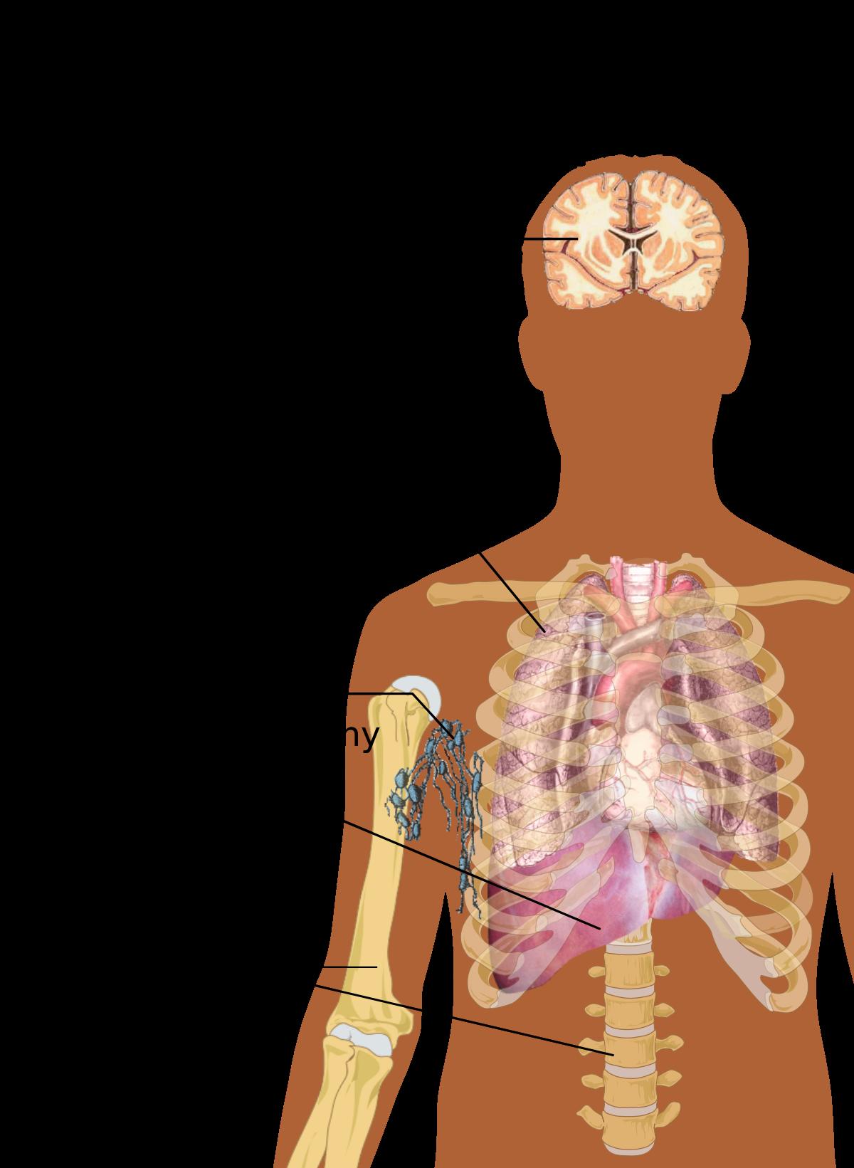 simptomele giardiozei în tratamentul adulților
