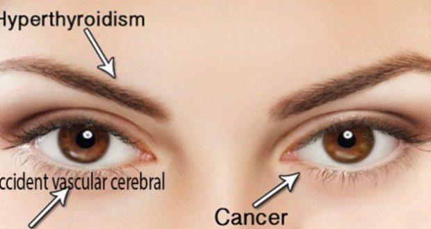 cancerul ochilor