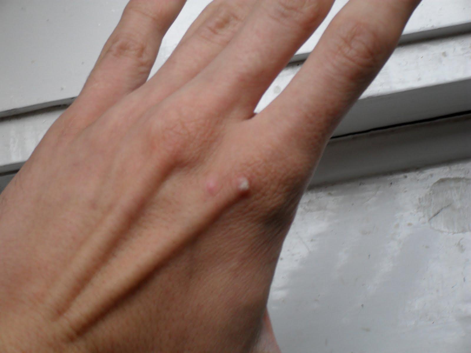 human papillomavirus impfung jungen în corpul uman