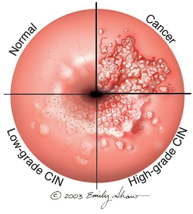 hpv throat cancer natural treatment îndepărtarea stomatologică a verucilor genitale