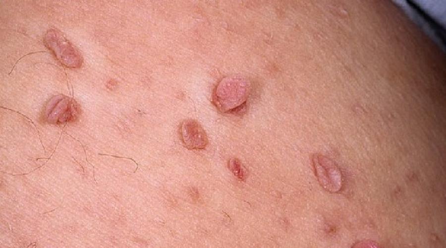 condiloame în tratamentul inghinal oxiurus verme